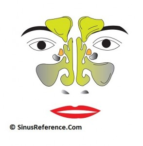 Sinusitis Infection