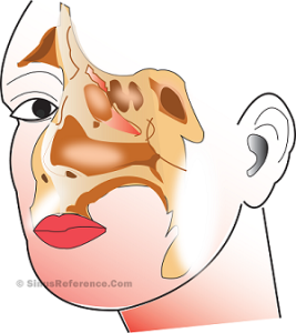 Chronic Sinusitis Infection